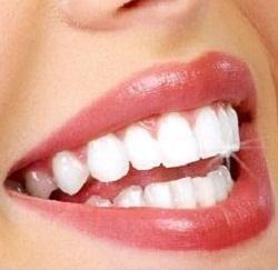 سفیدی دندان-5273