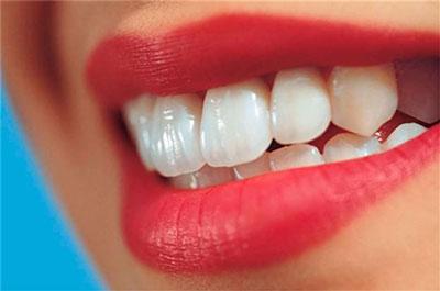 orthodontic-laminate70