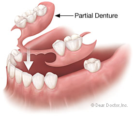 partial-denture2